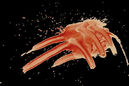 Blood Smear HD 8K