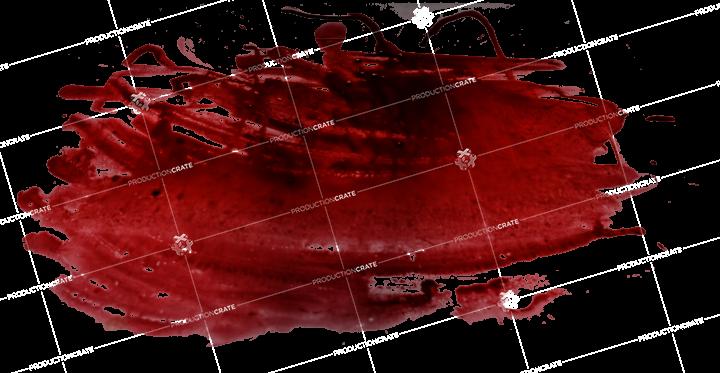 Blood Smear 3